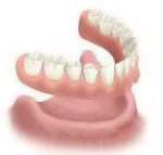 Perfect Smile complete-removable-denture