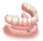 Perfect Smile implant supported overdenture